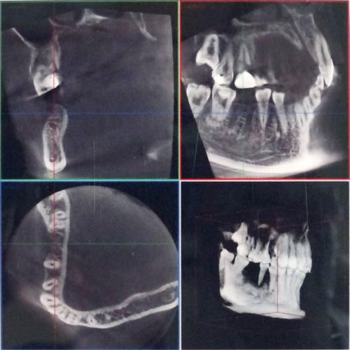 歯科用コーンビームCT