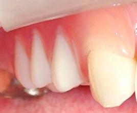 スマイルデンチャー バネなしの義歯